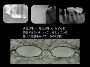 X線写真 .001.jpeg