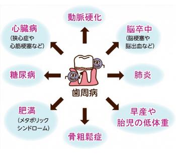 periodontal_03.jpg