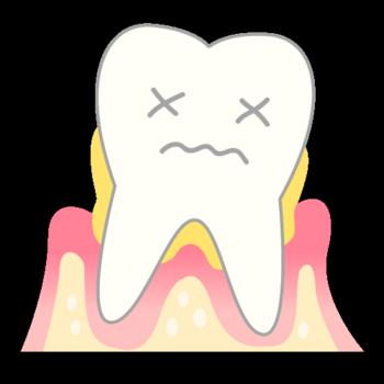 periodontosis_mechanism04.png